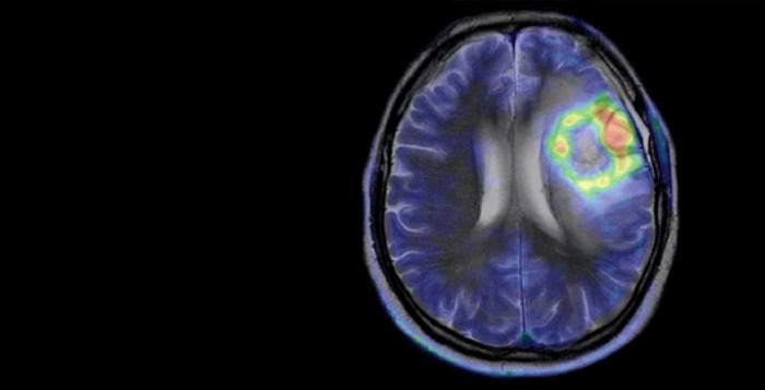 PET_CT_MR_brain-clinical_FullBleed2